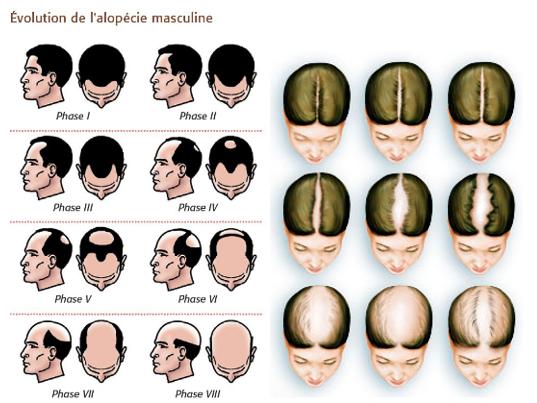 indications mesopecie