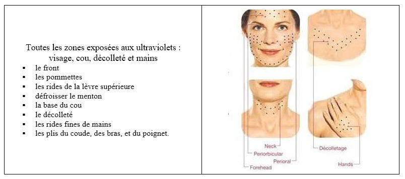 indications skinbooster